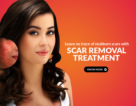 Anceta Skin & Hair Clinic In Kondapur, Hyderabad - Best