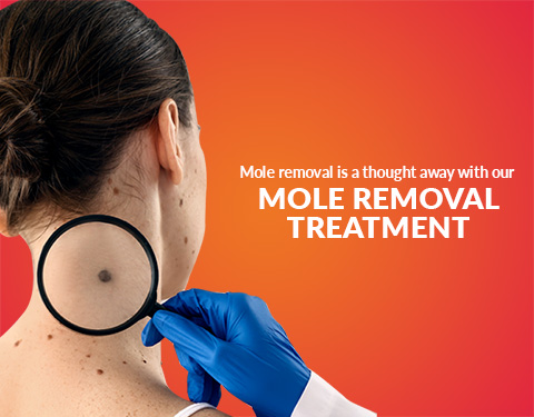 Best Clinic For Mole Removal Treatment In Hyderabad Cost Results